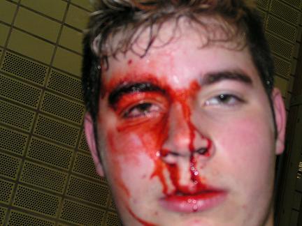 Der Mensch blutet von seinem Hintern