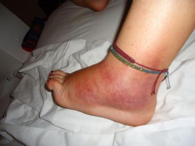 Oma Füße
